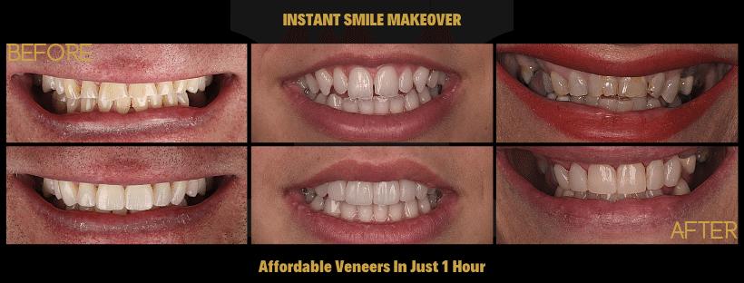 60 Minute Veneers With Smilefast